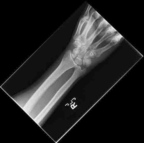 Cuánto tiempo tarda en pegar una fractura