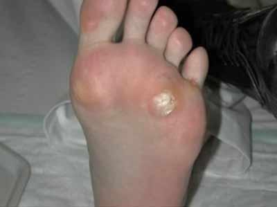 Cómo tratar una verruga en la planta del pie