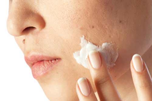 Lava tu piel con agua tibia y aplica un limpiador para quitar la
