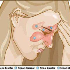 Cómo sentirte mejor si tienes sinusitis