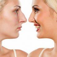 Cómo aprender a aceptar tu nariz