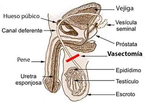 Cómo recuperarte de una vasectomía