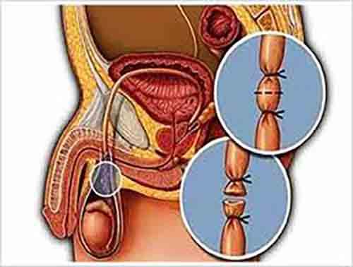 Ilustración de una vasectomía.